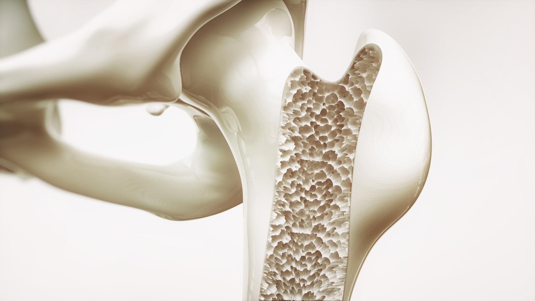 Leczenie osteoporozy – tę chorobę da się powstrzymać